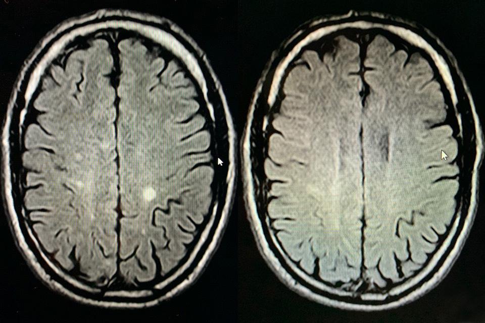 Multiple Sklerose Cannabidiol (CBD) und Cannabigerol (CBG)